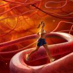 Атеросклероз: как лечить заболевание артерий и сосудов
