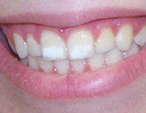 Почему появляются белые пятна на зубах и как от них избавиться