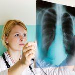 Симптомы и лечение вирусной пневмонии без температуры