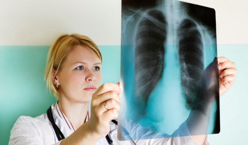 Рентген вирусная пневмония