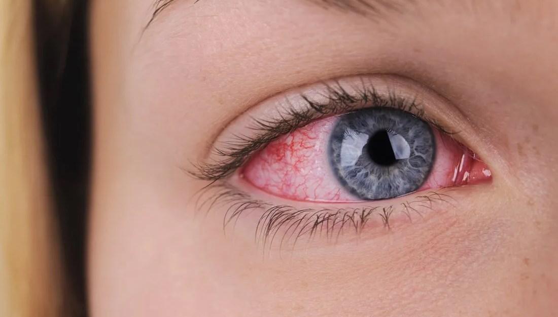 Красные глаза и головная боль