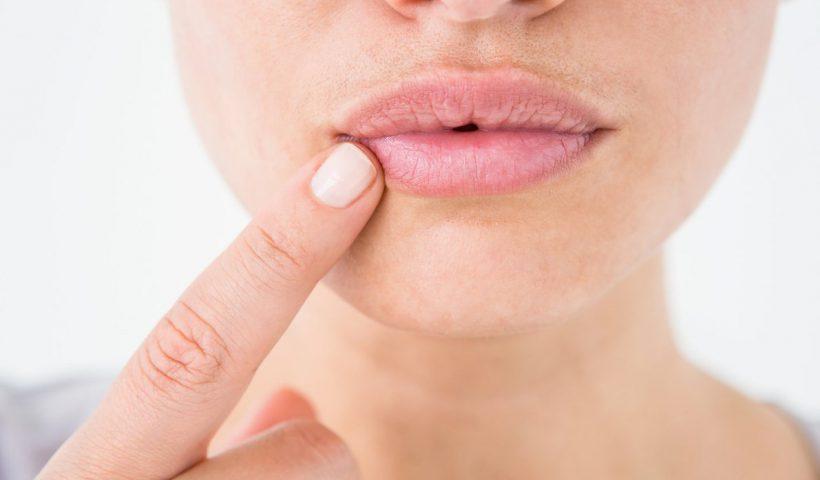 Трещина в уголке рта