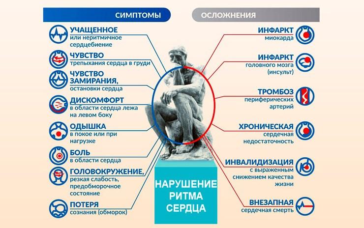 Аритмия симптомы