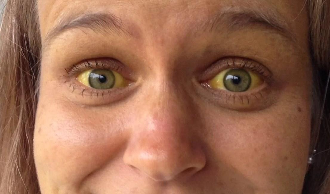 Гепатит глаза желтые