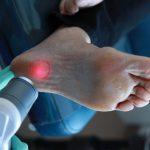 Как лечить пяточную шпору: причина и симптомы заболевания