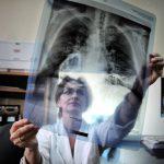 Туберкулез – как лечить опасное заболевание