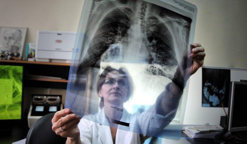Туберкулез рентген