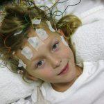 Причины и симптомы затылочной эпилепсии у детей