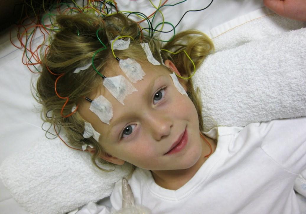 Исследования эпилепсия