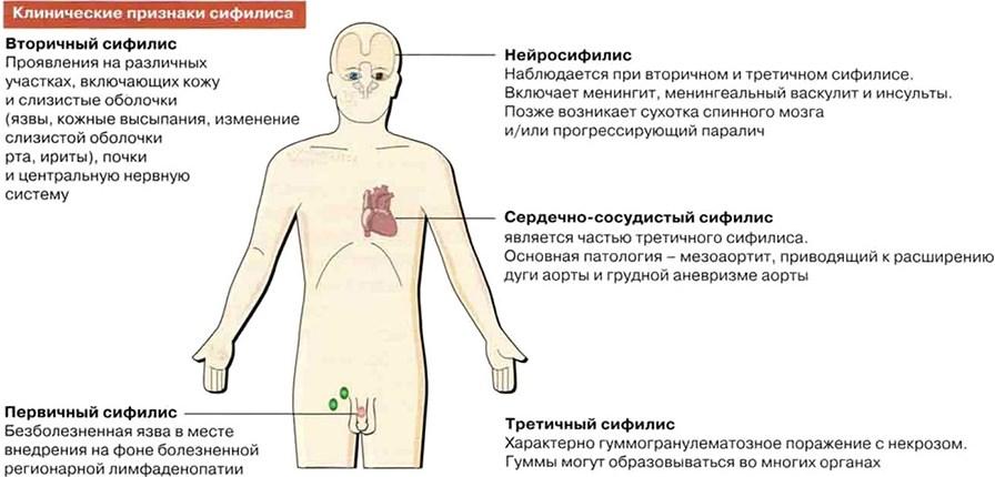 Симптомы сифилиса
