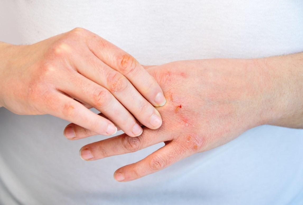 Поражение кожи кисти