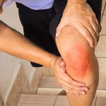 Пантогор – цена, где купить и как использовать гель для суставов