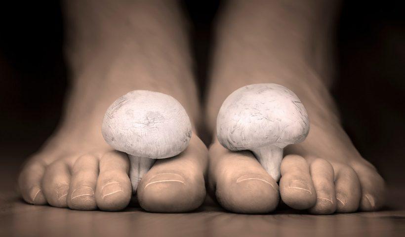 Грибок стопы