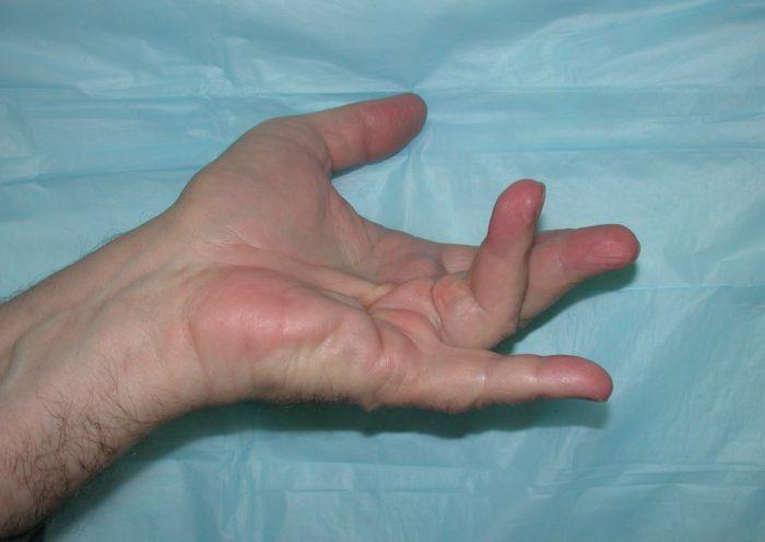 Опухает палец