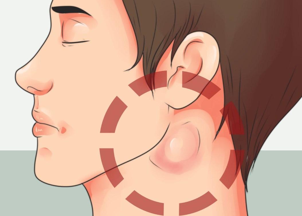 Симптомы увеличения лимфоузлов