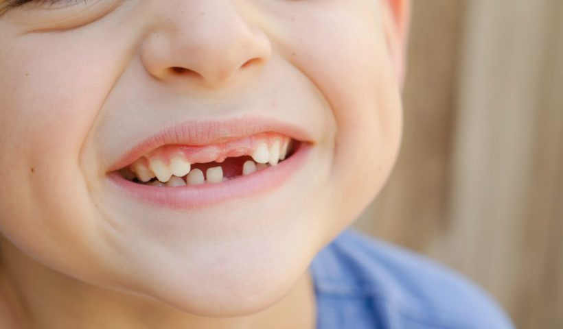 криво растет зуб у ребенка