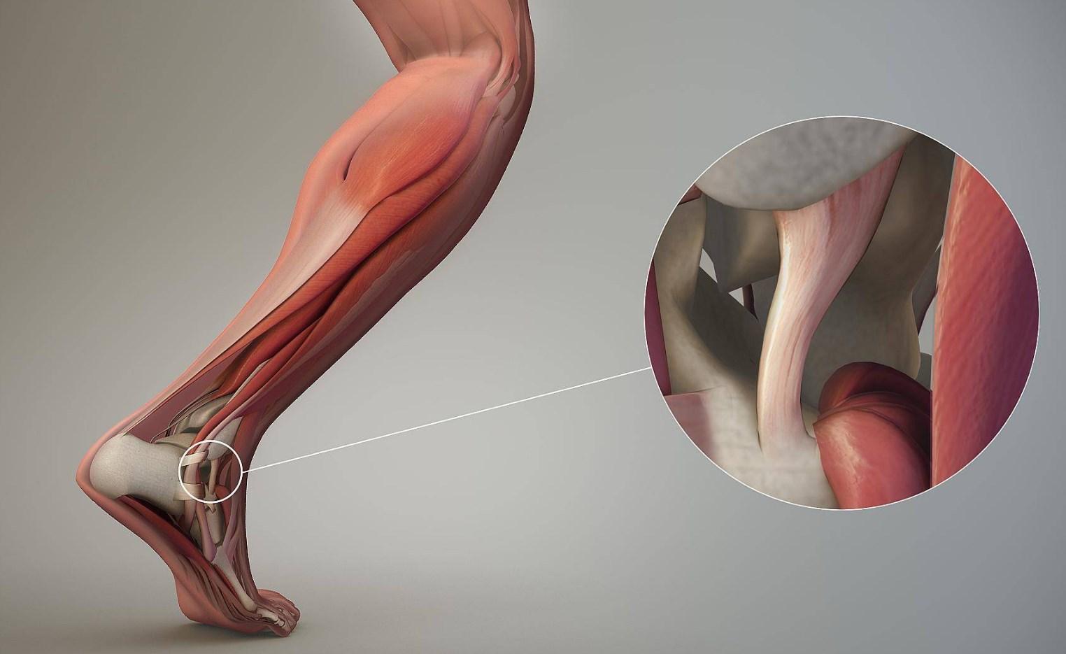 Расятжение связок голеностопа