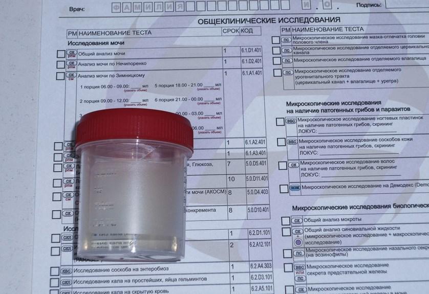 Анализ мочи грибок