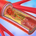 Холестериновые бляшки – причины, как лечить