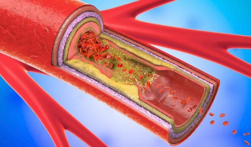 Холестериновые бляшки в сосуде