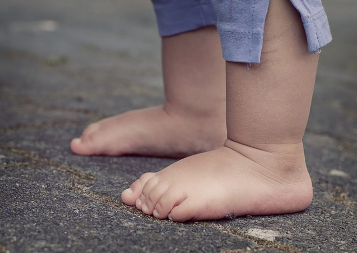 Плосковальгусная стопа у детей