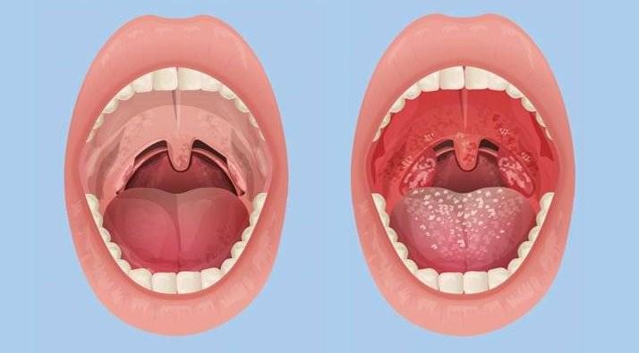 Тонзиллит миндалины