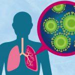 Грибковая пневмония – причины, симптомы и лечение