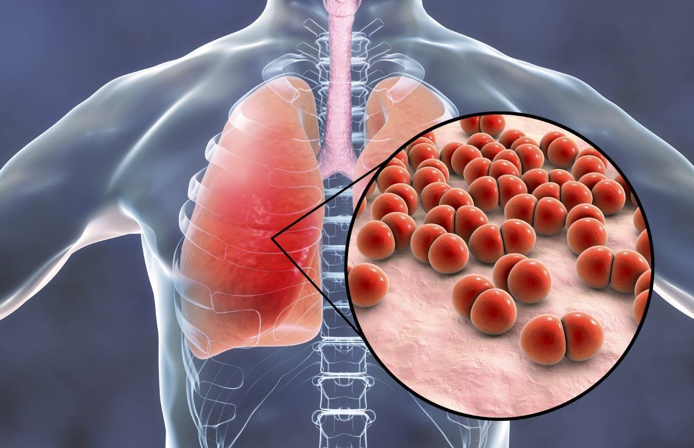 Пневмония грибок