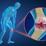 Артидекс для суставов – инструкция по применению