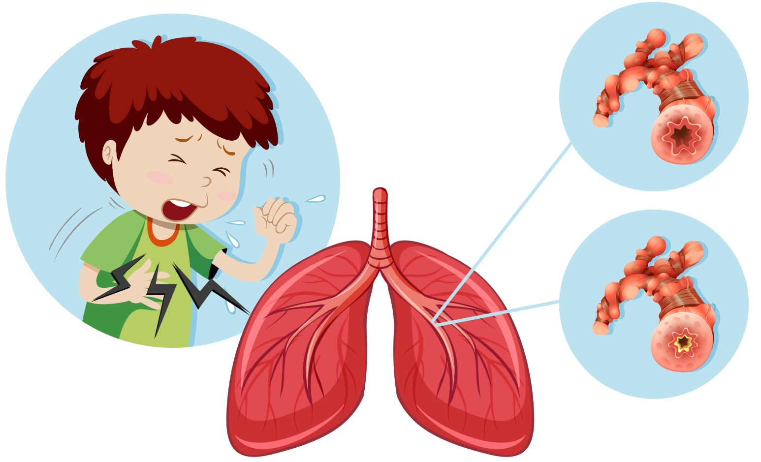 Бронхи кашель ребенок