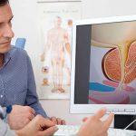 Доброкачественная гиперплазия – лечение предстательной железы