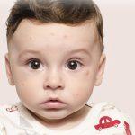 Причины появления розеолы у детей