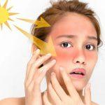 Солнечная крапивница – как лечить фотодерматоз