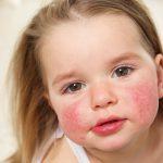 Симптомы и лечение аллергии у детей