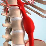 Аневризма брюшного отдела аорты – симптомы и лечение