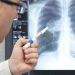Пневмония у взрослых без температуры – причины и лечение
