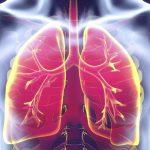 Пневмония – как определить в домашних условиях