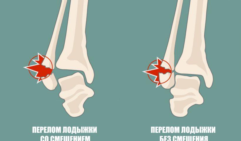 Осложнения перелома