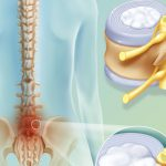 Симптомы протрузии позвоночника поясничного отдела