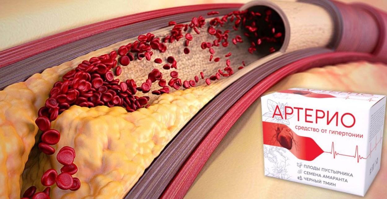 Артерио сосуды