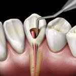 Для чего нужна цистэктомия зуба