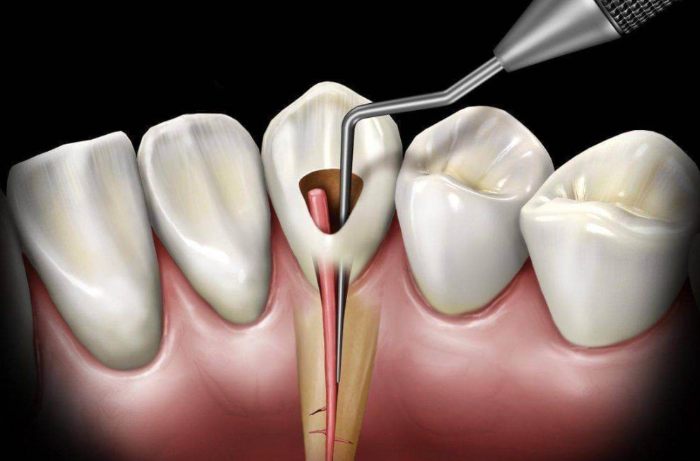 Цистектомия зуба