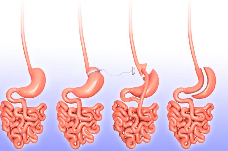 бариатрическая хирургия похудение