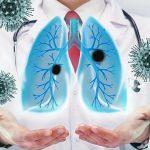 Симптомы, причины и факторы риска интерстициального заболевания легких