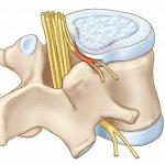 Защемление нерва – возможные причины и характерные симптомы