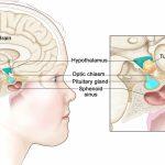 Макроаденома гипофиза - симптомы, причины, факторы риска и осложнения