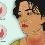 Тиреоидит Хашимото: причины, симптомы и осложнения