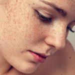 Пигментные пятна: почему возникает дефект, симптомы и факторы риска