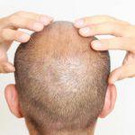 Себорея кожи головы - почему возникает раздражение и шелушение