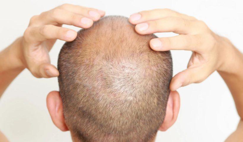 Себорея головы